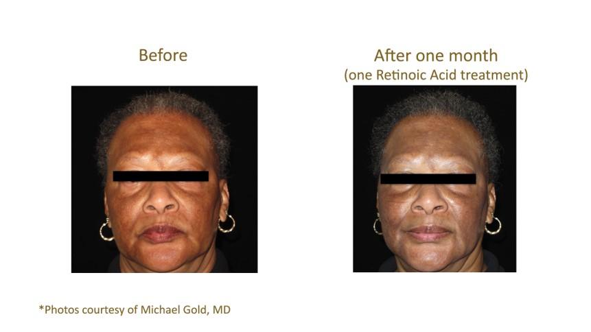 Aquagold Fine Touch Retinoic Acid Treatment.jpg
