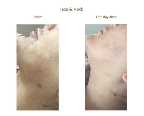 Aquagold face & neck.png