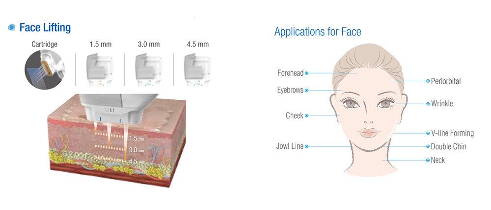 ULfit face-lifting HIFU.jpg