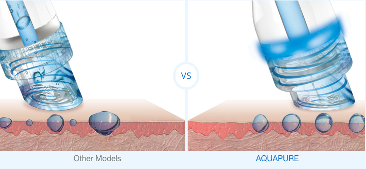 Aquapure compared to other hydradermabrasion.jpg