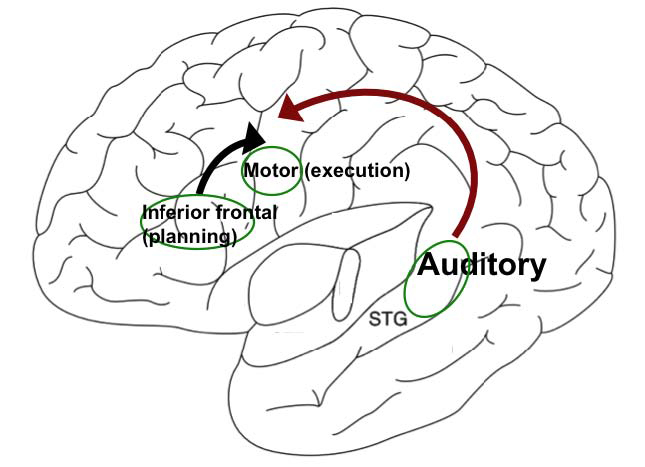 Figure courtesy of Soo-Eun Chang  A simplified model of the left hemisphere showing the inferior frontal region (speech planning), motor cortex (speech execution), and superior longitudinal fasciculus (auditory processing), which is interconnected via the superior longitudinal fasciculus (depicted with arrows).