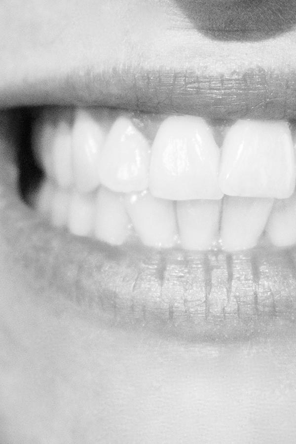 Strohmenger_Zahntechnik_Smile1.jpg