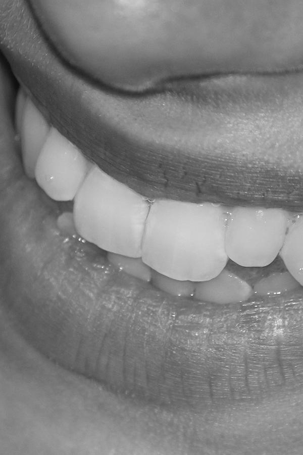 Strohmenger_Zahntechnik_Smile4.jpg