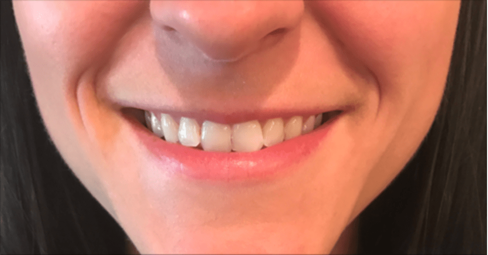 teeth-whitening-ooltewah.png