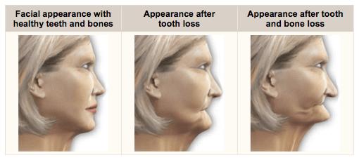 Jawbone-Loss.png