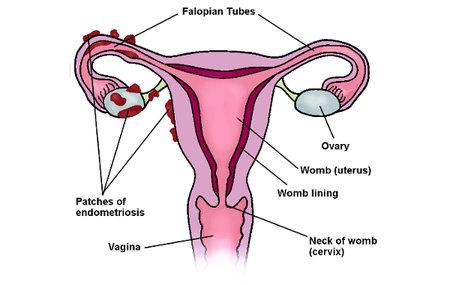 photo from  Endometriosis UK