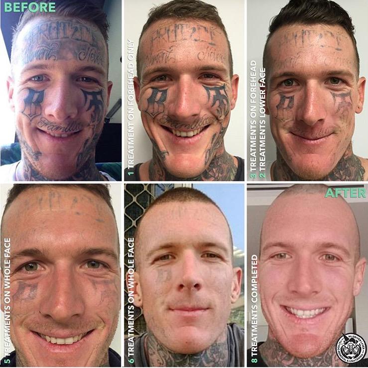 Aaron Bremmer Face Laser Removal