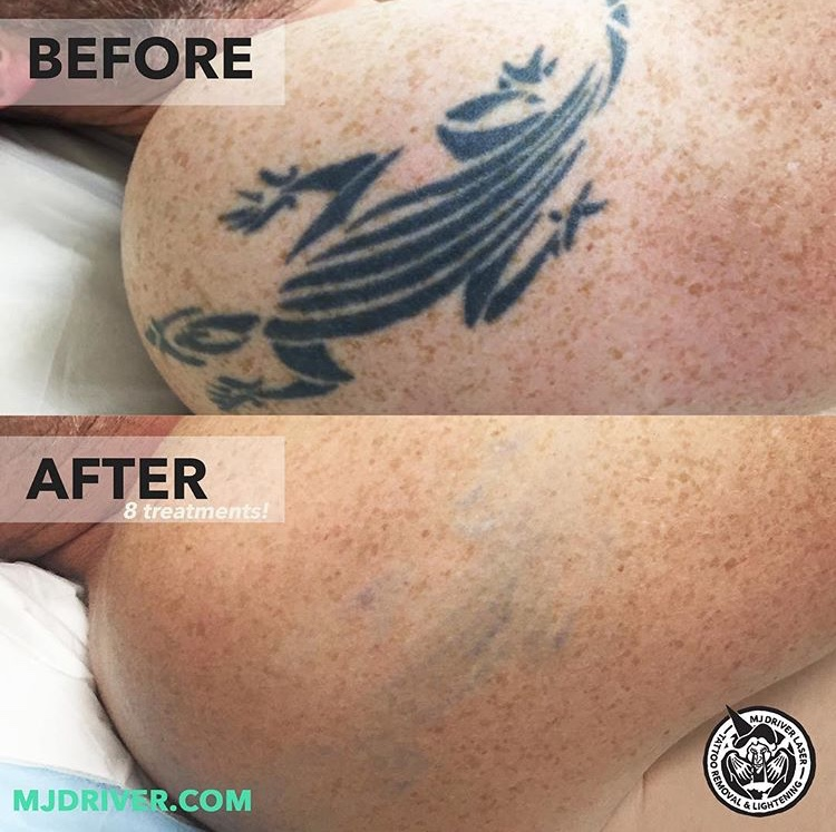 Before and After: Laser Tattoo Removal — MJ Driver Laser