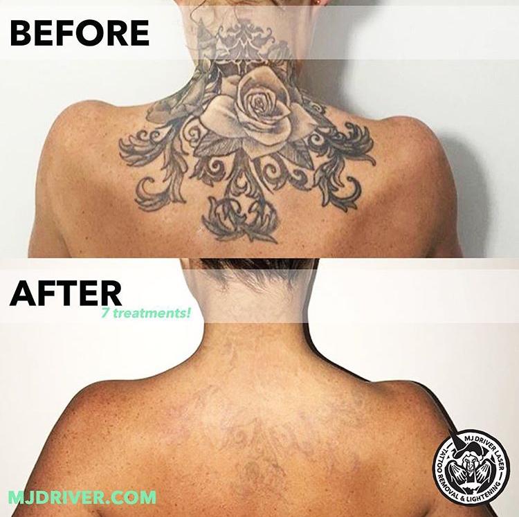 mj driver laser tattoo removal gold coast