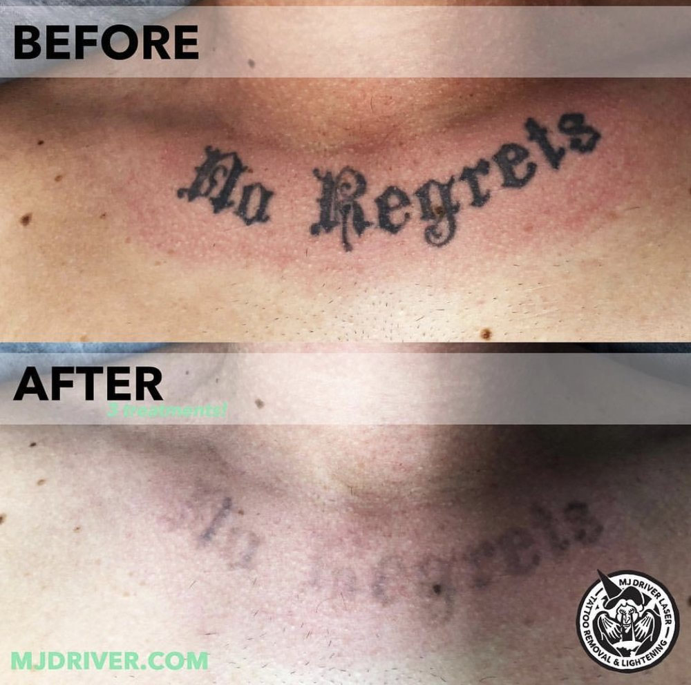 No Regrets MJ Driver Before and After Laser Tattoo Removal