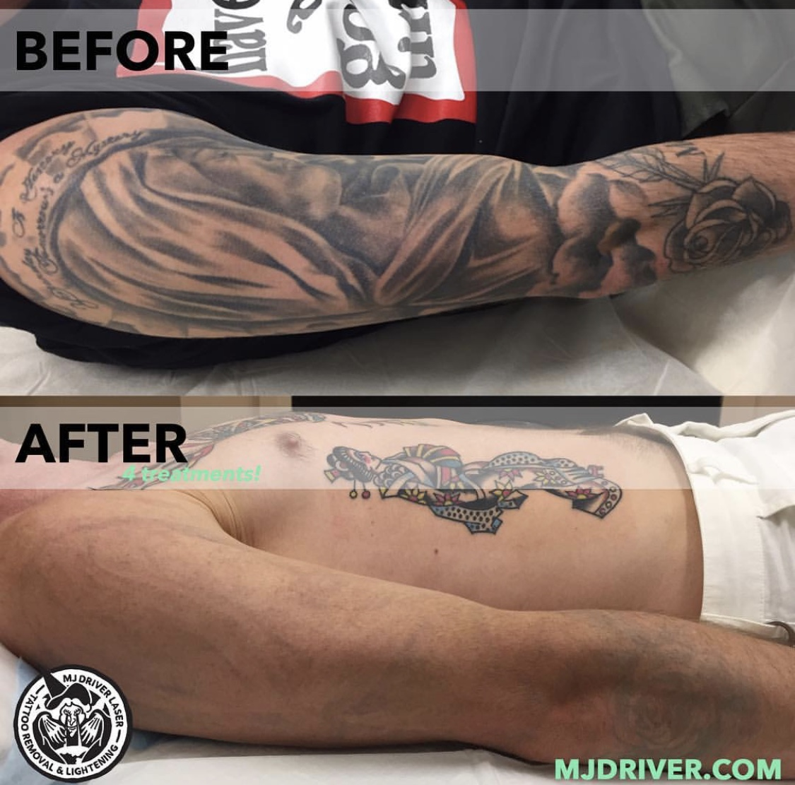 NEW | Before and After Laser Tattoo Removal — MJ Driver Laser