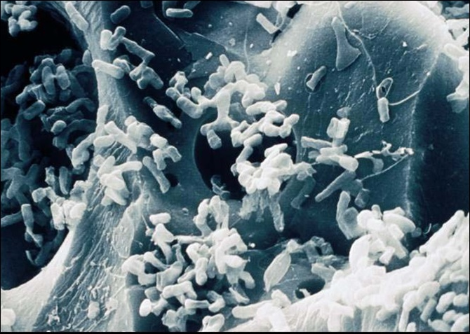 Bacteria on Filtralite, scanning electrone microscope photo.