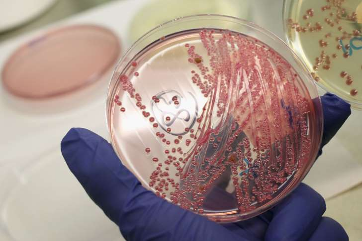 Two Dead In Utah Due To Possible E.Coli Outbreak - See the prespectives on this story
