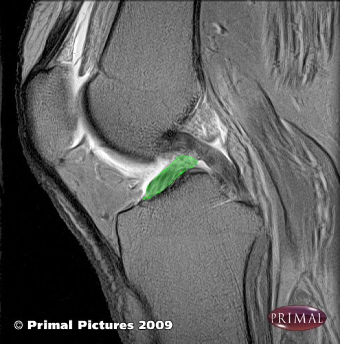 The ACL highlighted on this MRI image