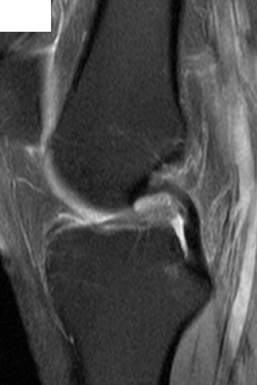 An MRI scan image of a ruptured ACL