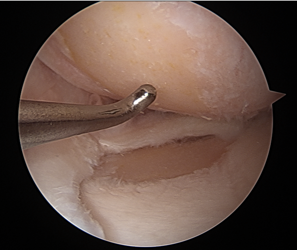 An image captured during keyhole surgery of worn out cartilage in the inner half of a knee.