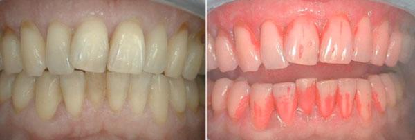 A gauche : avant application de révélateur. Les dents semblent propres A droite : après application de révélateur. La plaque est colorée en rouge