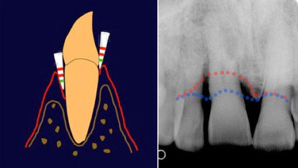 Schéma de gauche : Le sondage parodontal. A droite : situation saine, la gencive est attachée, la sonde ne passe que sur les premiers mm. A gauche : la sonde passe de plus de 3 mm dans la poche Image de droite : La radiographie. En bleu, niveau normal de l'os. En rouge, niveau de perte d'os