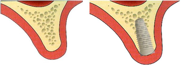 A gauche, le volume osseux est satisfaisant tant en hauteur qu'en épaisseur. Une fois l'implant mis en place (à droite) il est complètement dans l'os