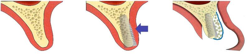 """A gauche, l'épaisseur d'os est limitée. Un implant pourrait être fixé mais une partie serait hors de l'os (flèche bleue au centre). Le """"manque"""" osseux est compensé par apport de biomatériau, lui même recouvert par une membrane (vue de droite) et recouvert par la gencive."""