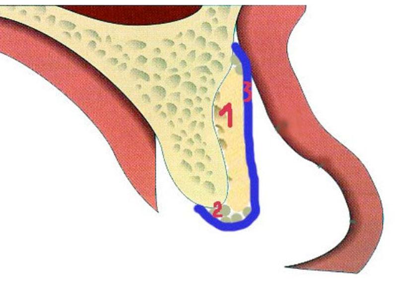 Lorsque l'épaisseur est nettement trop faible, un greffon, adapté à la morphologie du défaut (1) est fixé. Un biomatériau (2) est éventuellement utilisé. Le toutest recouvert par une membrane (3) puis par la gencive.