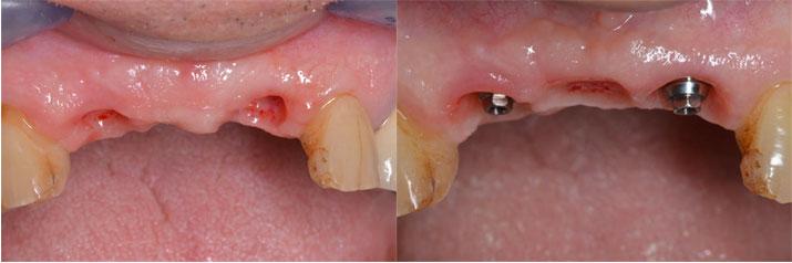 Les implants ont été posés. Au bout de 5 mois dans ce cas, des piliers intermédiaires sont mis en place (à droite)