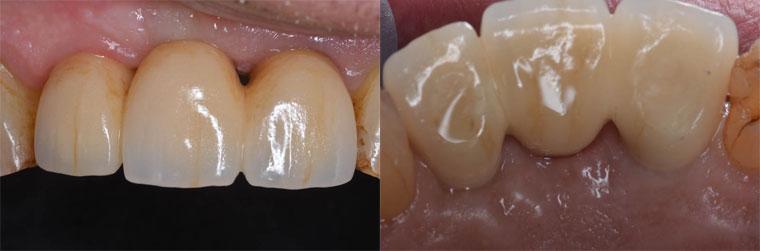 Vue clinique terminale. L'image de gauche montre la face interne une fois les puits de vissage obturés.