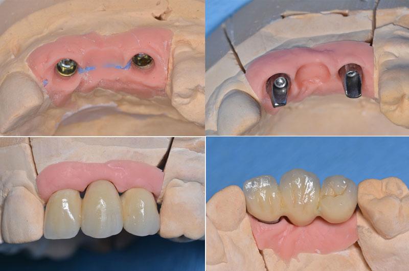 En haut à gauche, vue des répliques d'implants sur le modèle de laboratoire. En haut à droite, les piliers en titane sont réalisés. En bas à gauche, le bridge en vue latérale et à droite en vue occlusale. Il n'y a pas ici de puits de vissage