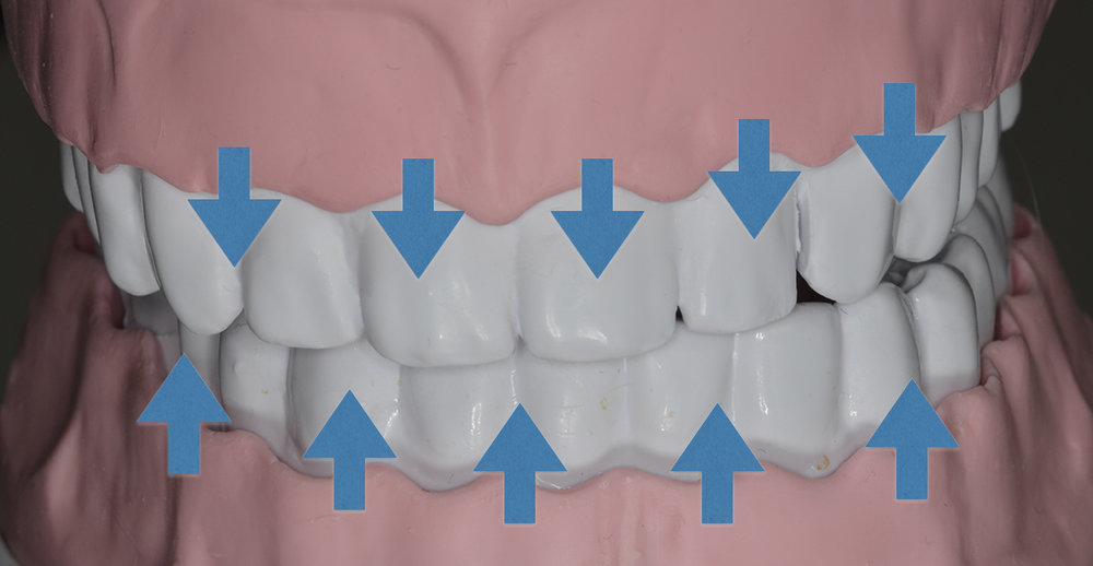 Mouvements de la gencive vers la dent dans la méthode du rouleau