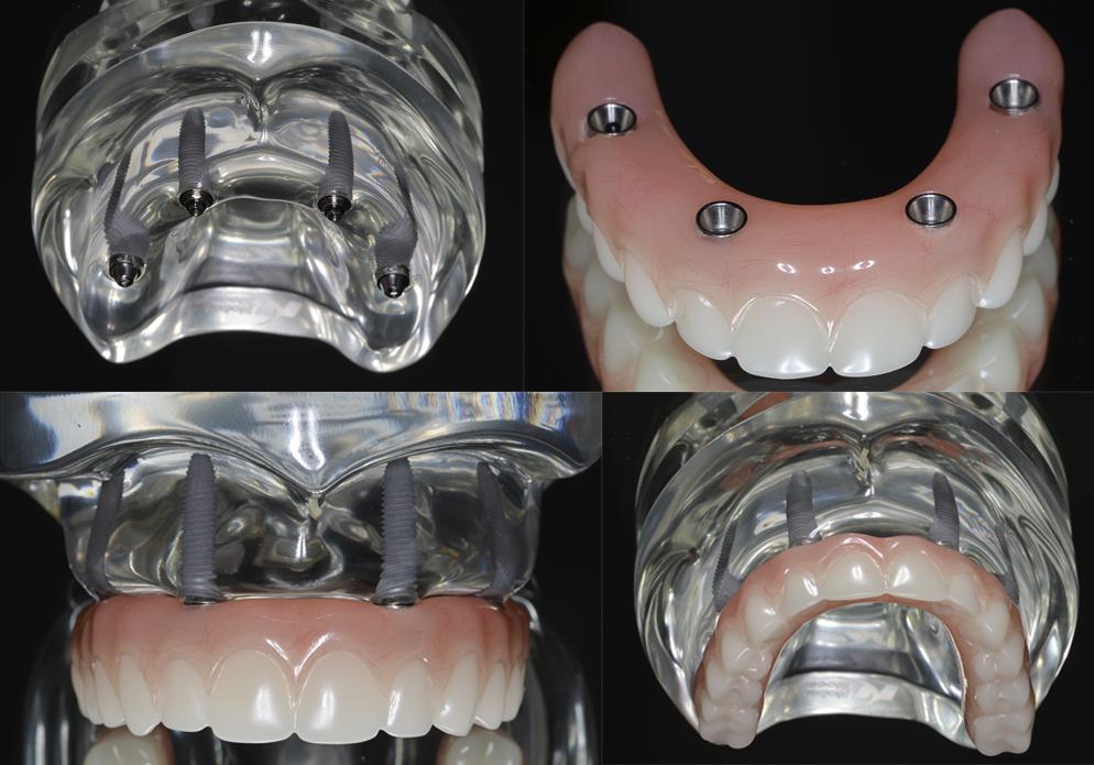 Ce modèle permet de visualiser les implants dans la machoire avec leurs piliers (en haut à gauche). La vue de droite en haut montre une prothèse avec le passage pour les vis. La prothèse est vissée sur les implants (en bas)