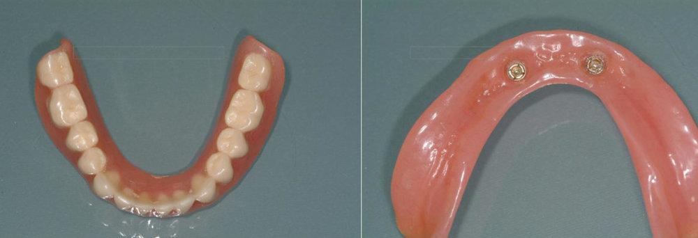 Un appareil résine conventionnel est réalisé (il pourra être renforcé avec une partie métallique si nécessaire). la vue de droite montre les parties femelles des attachements dans l'intérieur de la prothèse.