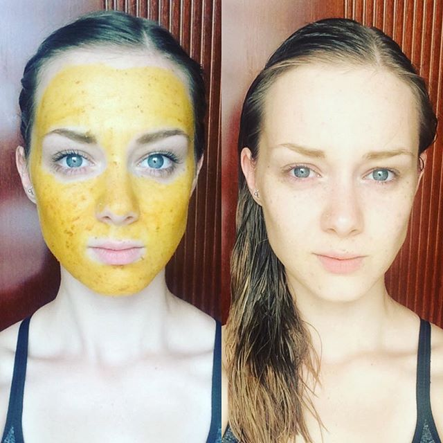 DIY Turmeric, Honey & Coconut Oil Face Mask 💛 I've been wanting to try a Turmeric face mask for ages now, and I have finally got around to doing it! This mask is made from 3 simple, all natural ingredients in equal measures and leaves your skin feeling bright and smooth! Turmeric is a beautiful spice with loads of benefits for your skin! It contains antioxidants, anti-ageing properties and is great to use if you suffer from any pigmentation. Turmeric is also anti-bacterial and helps to fight acne. Honey is also known for being great at combating acne and reducing redness. Combine this with coconut oil which has too many benefits to mention and you've got yourself a super-mask! I'm so glad I tried this as it has left my skin feeling brighter, refreshed and moisturised to boot! Make sure you wash this mask off thoroughly (I cleansed with coconut oil afterwards) to avoid any staining! 💛 #jasminesbeautykitchen  #naturalskincare #homemadebeautyproduct #diy #diybeautyproducts #diybeautytips #homemadefacemask #antioxidant #turmeric #honey #coconutoil #coconutoilbenefits