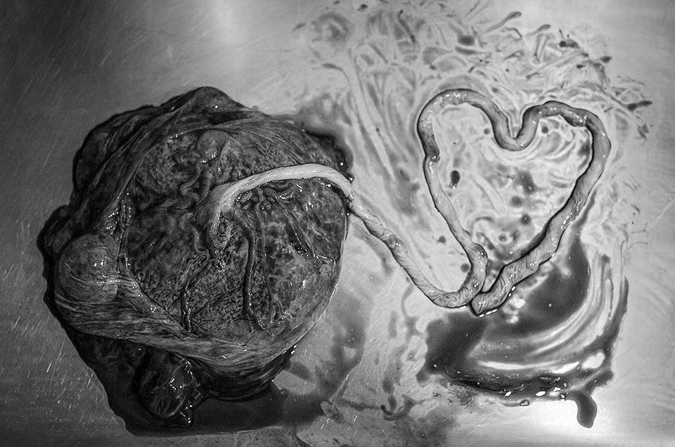 Black and white image of a placenta with the cord arranged into a heart.