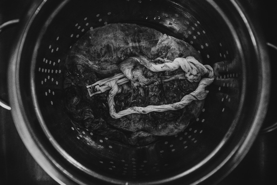 Black and white grainy image of a placenta in a colander