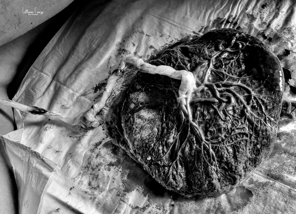 Black and white image of a placenta laid out with umbilibcal cord to look like the tree of life.