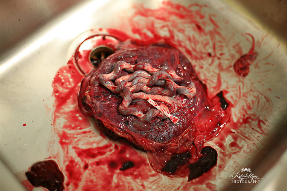 Placenta laying in a steel sink with clip still attached to end of umbilical cord.