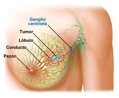 Qué es el cáncer de mama? Causas, síntomas y tratamiento