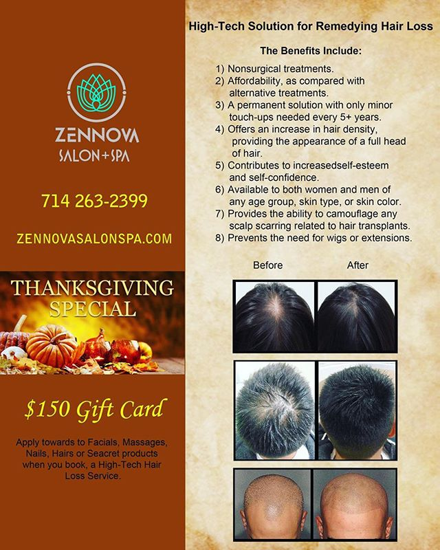 Introducing our newest service: high-tech solution for Hair Loss Remedy. The non-surgical treatments are more affordable and offer an increase in hair density for all hair types, age groups, genders, skin type & skin color. Take advantage of our Thanksgiving special by calling for a consultation at 714.263.2399. Offer good till Nov 30, 2017 . . . #zennovasalonspa #ocsalon #ocsalons #gardengrovesalon #ocspa #gardengrovehair #westminstersalon #santaanahair #santaanasalon #hairstyles #haircut #hairsalon #hairstylist #hairstyling #haircolors #haircuts #hairstyle #fabuloushair #fabuloushairday #fabuloushairclub #hairstylistrock #beautifulhair4u #hairloss #hairlosssolution #hairlosstreatment #hairlosstreatments #hairlossremedy #hairdensity