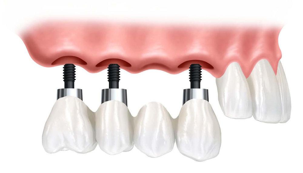 dental-implant-supported-bridge.jpg