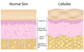 Cellulite_MaNaturopathe.com