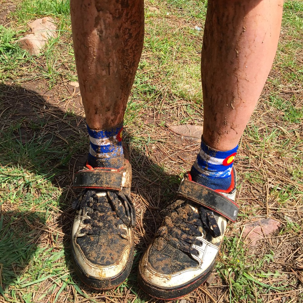 State of the shins. Post ride.