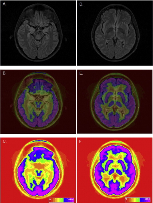 Epilepsy & Behavior Case Reports June 2015