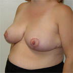 1,000 gms off each breast 40 C