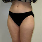 "Lipo of thighs 5' 6"" 140 lbs."