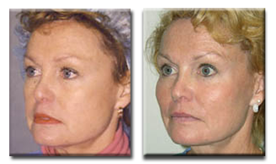 Before, with fat loss to the cheeks. After fat injections to cheeks.