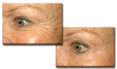 Before, and after Botox injections to crows feet.