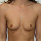 Right breast is higher on chest wall