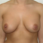 "...often gives a ""V"" shaped cleavage after surgery"