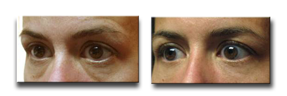 Before Fillers to Lower Eyelids, and Eight Months After 1cc of Restylane