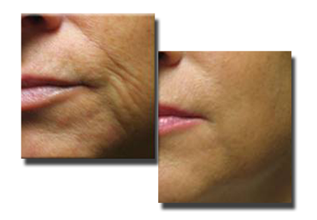 Before Fillers to Lines Around Mouth and Nose, and Two Weeks After 2cc of Juvederm.